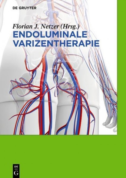 Endoluminale Varizentherapie