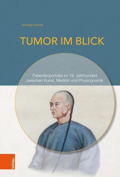 Tumor im Blick
