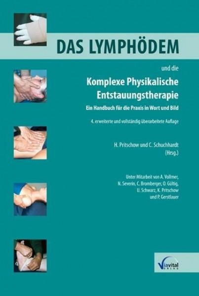 Das Lymphödem und die Komplexe Physikalische Entstauungstherapie