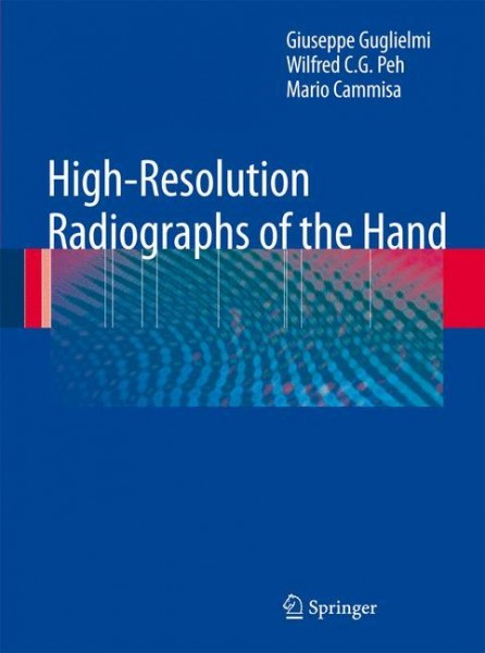 High-Resolution Radiographs of the Hand