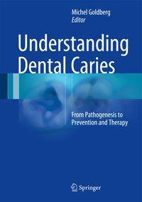 Understanding Dental Caries