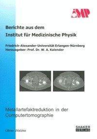 Metallartefaktreduktion in der Computertomographie