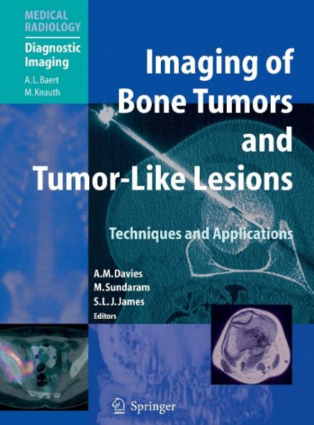 Imaging of Bone Tumors and Tumor-Like Lesions