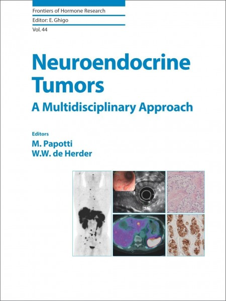 Neuroendocrine Tumors: A Multidisciplinary Approach