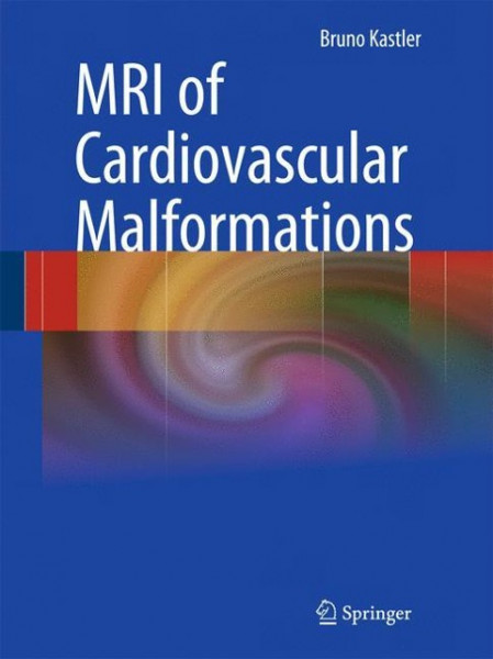 MRI of Cardiovascular Malformations