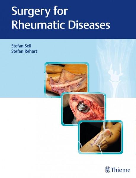 Surgery for Rheumatic Diseases