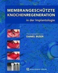 Membrangeschütze Knochenregeneration in der Implantologie